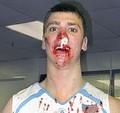 bloody%20basketball.jpg